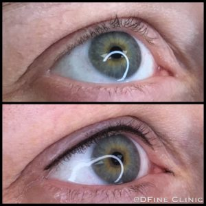 DFine-Clinic-Permanente-Make-up-Amsterdam-kliniek-eyeliner-02