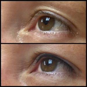 DFine-Clinic-Permanente-Make-up-Amsterdam-kliniek-eyeliner-05