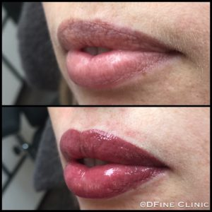 DFine-Clinic-Permanente-Make-up-Amsterdam-kliniek-lippen-03