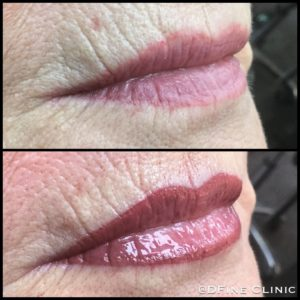 DFine-Clinic-Permanente-Make-up-Amsterdam-kliniek-lippen-04