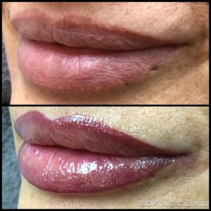 DFine-Clinic-Permanente-Make-up-Amsterdam-kliniek-lippen-05