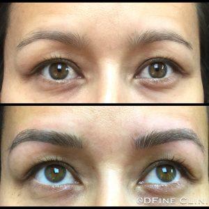 DFine-Clinic-Permanente-Make-up-Amsterdam-kliniek-wenkbrauwen-vrouwen-01