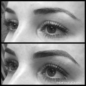 DFine-Clinic-Permanente-Make-up-Amsterdam-kliniek-wenkbrauwen-vrouwen-02