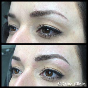 DFine-Clinic-Permanente-Make-up-Amsterdam-kliniek-wenkbrauwen-vrouwen-04