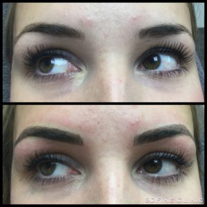 DFine-Clinic-Permanente-Make-up-Amsterdam-kliniek-wenkbrauwen-vrouwen-05