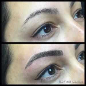DFine-Clinic-Permanente-Make-up-Amsterdam-kliniek-wenkbrauwen-vrouwen-06