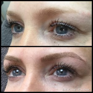 DFine-Clinic-Permanente-Make-up-Amsterdam-kliniek-wenkbrauwen-vrouwen-25