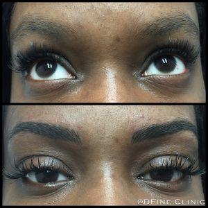 DFine-Clinic-Permanente-Make-up-Amsterdam-kliniek-wenkbrauwen-vrouwen-26