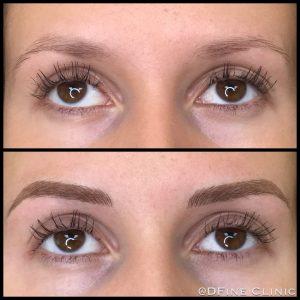 DFine-Clinic-Permanente-Make-up-Amsterdam-kliniek-wenkbrauwen-vrouwen-27